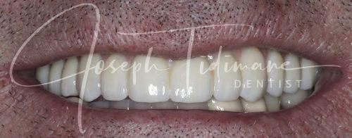 After Dental Implants Treatment